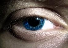 ojo conjuntivitis