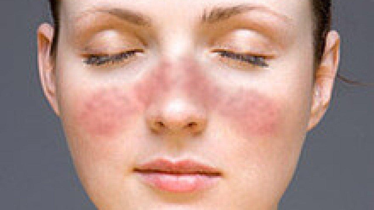remedios para lupus eritematoso
