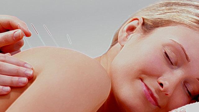 mujer guapa tumbada con acupuntura en la espalda